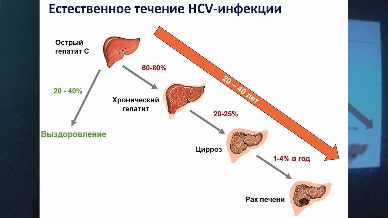 Как передается цирроз печени, заразен ли он для окружающих?