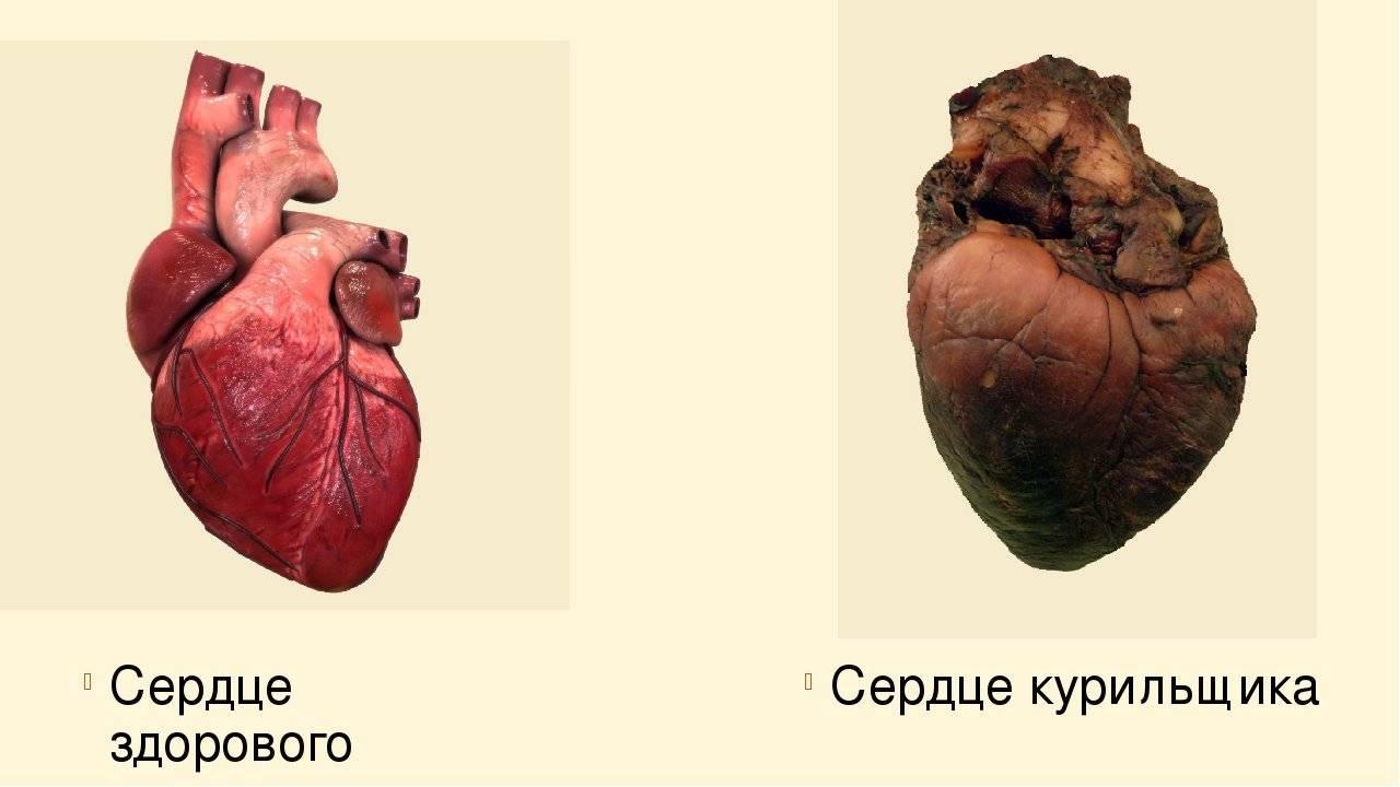 После отказа от курения тахикардия - я гипертоник