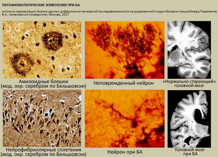 Сенильная дегенерация головного мозга как причина смерти: виды и стадии нарушения, старческий маразм, сколько живут на 3 степени, особенности ухода, профилактика