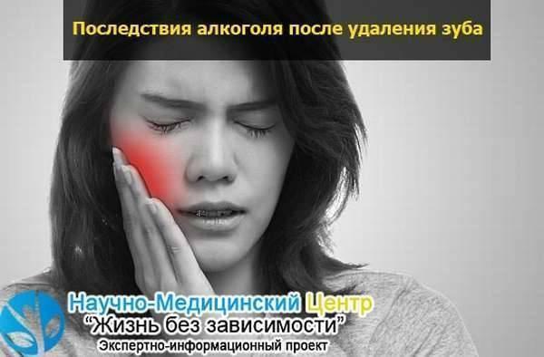 Алкоголь после удаления зуба, мнение специалиста