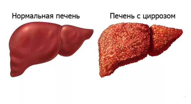 Обратим ли цирроз - лечение печени