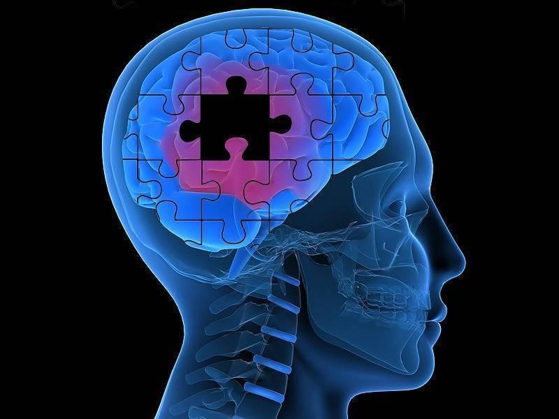Как алкоголь влияет на мозг, влияние на сосуды головного мозга при употреблении