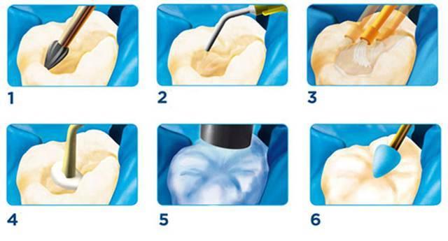 Через сколько часов после пломбирования зуба можно пить?