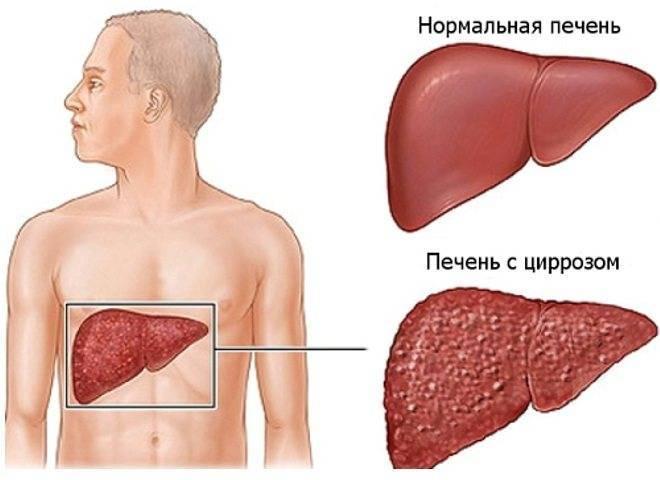 Рак печени: симптомы, проявления, диагностика и лечение