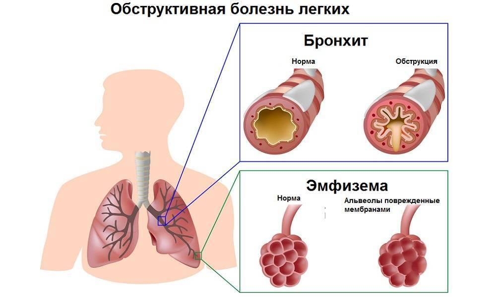 Курение при бронхите последствия — простуда