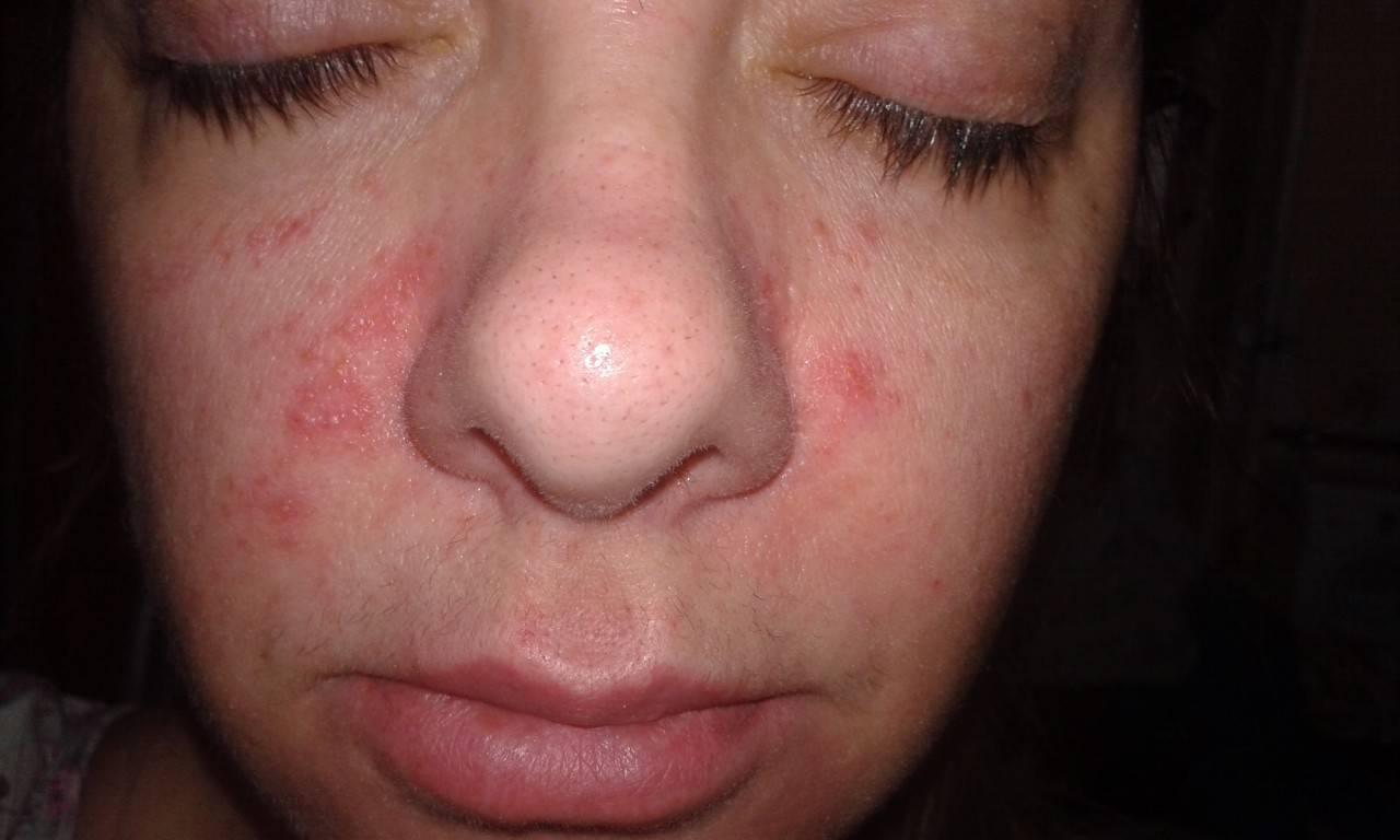 Пятна на лице после алкоголя: фото, возможные заболевания, лечение
