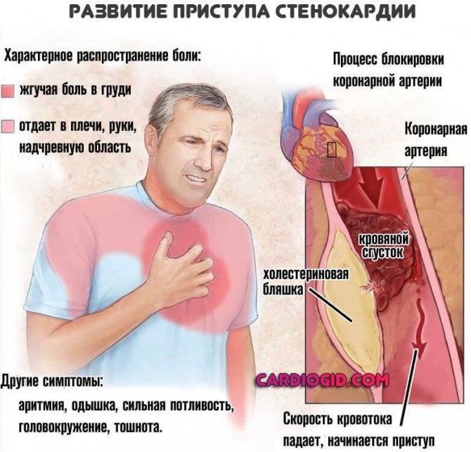 С похмелья сильно бьется сердце: что делать после запоя