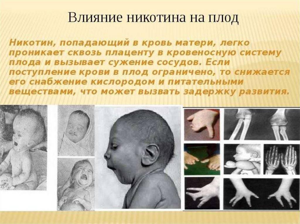 Алкоголь во время беременности - влияние спиртного на развитие плода и последствия употребления