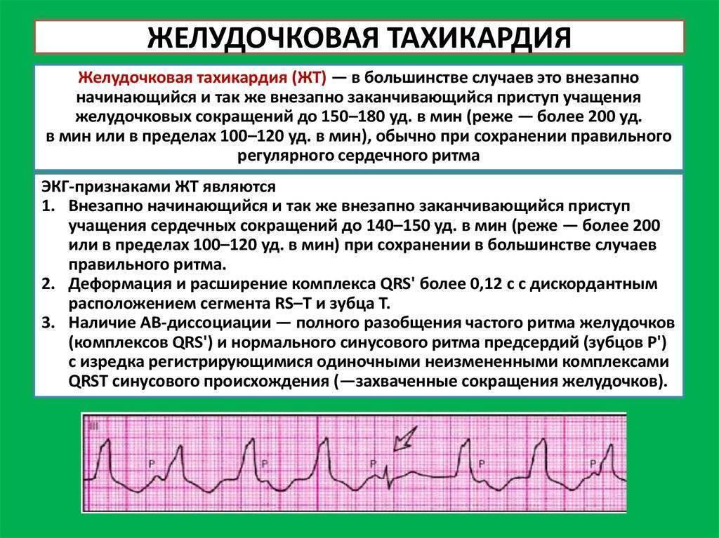 Пульс после алкоголя: почему высокий, как снизить, если 130-140 ударов в минуту, почему бывает низкий пульс после спиртного