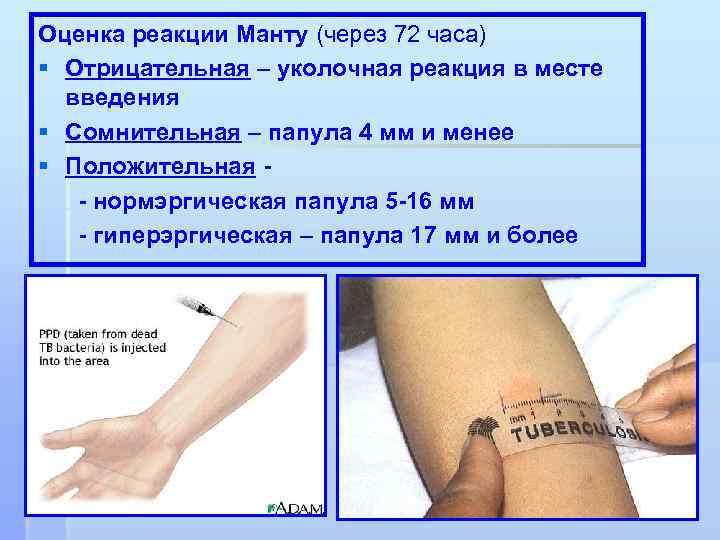 Можно ли мочить манту и почему, что будет, если это сделать, через сколько дней разрешено купаться? - wikidochelp.ru
