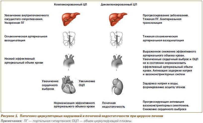 Портальная гипертензия при циррозе печени прогноз - гипертонии нет
