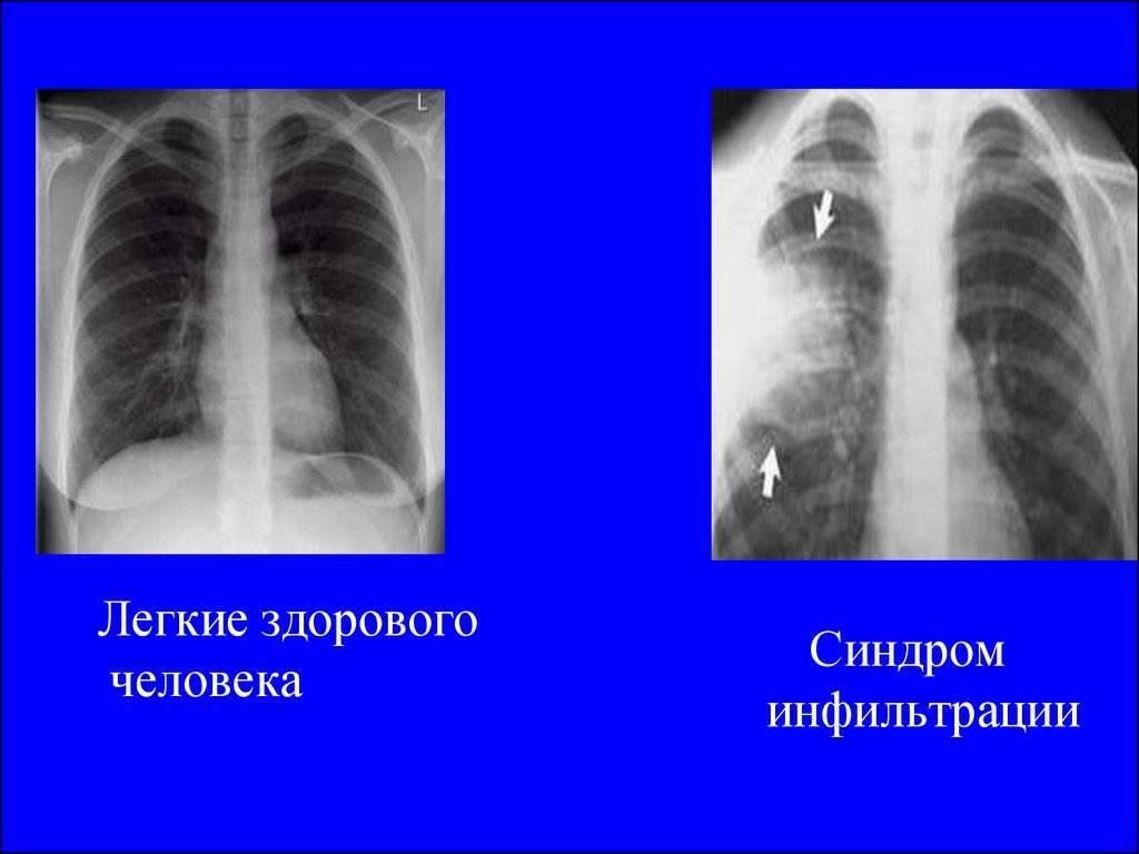Что показывает флюорография и особенности рентгена легких курильщика