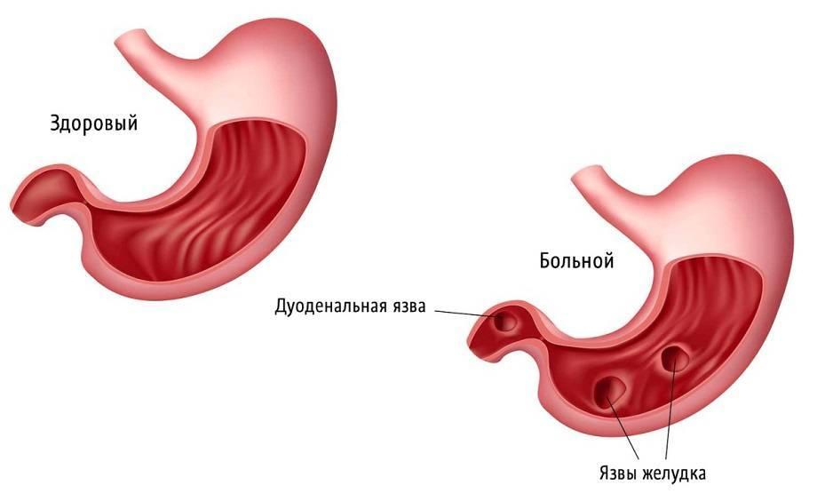 Можно ли курить кальян когда болит желудок