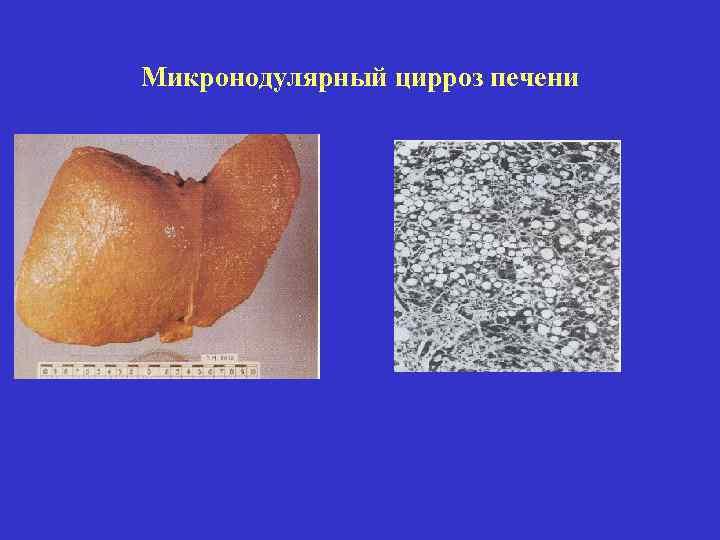 Причина мелкоузлового цирроза печени