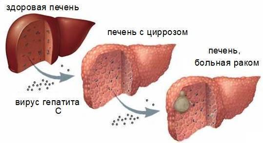 Сколько живут с асцитом при циррозе печени?