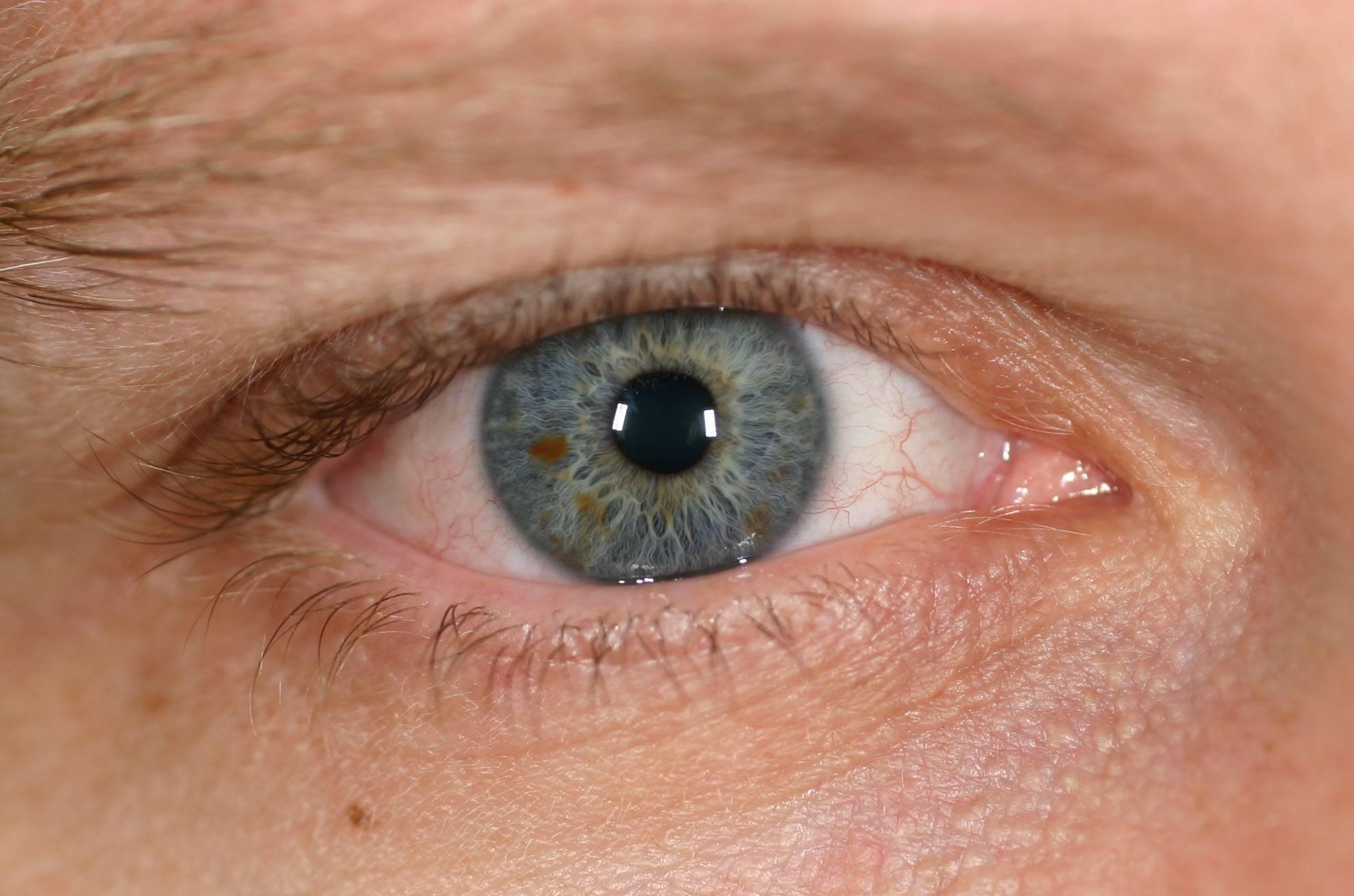 """Желтые белки глаз: причины и лечение - """"здоровое око"""""""