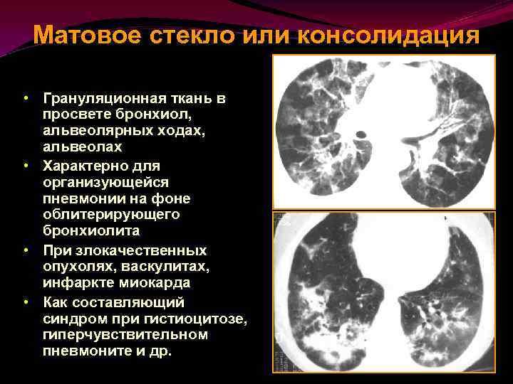 Попкорновая болезнь легких симптомы