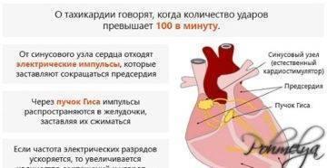 Тахикардия после алкоголя: причины, симптомы, лечение и профилактика