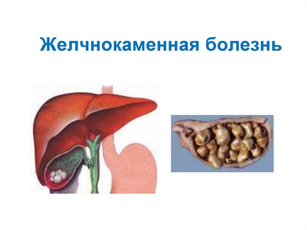 Курение и желчный пузырь: опасность для мужчин и женщин