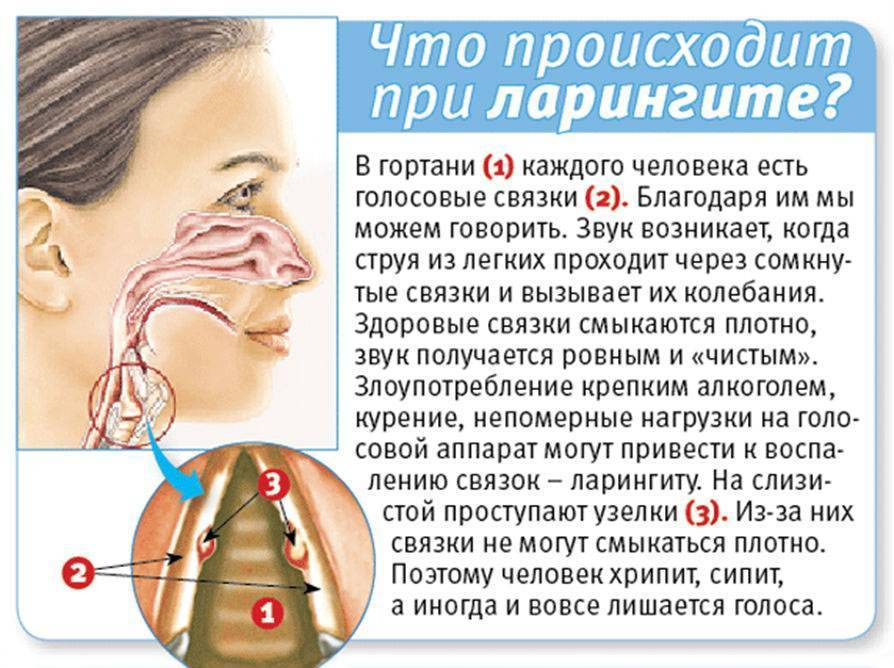 От iqos болит горло – причины, симптоматика, рекомендации ?