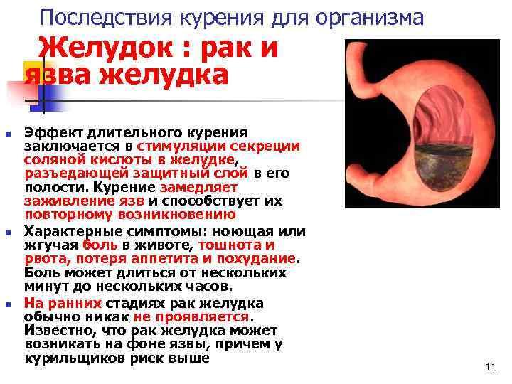 Может ли от курения болеть желудок: влияние, заболевания, лечение