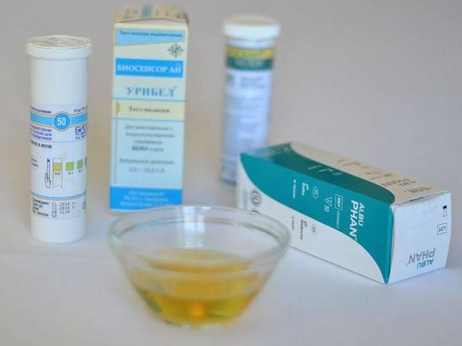 Тест-полоски для определения сахара в моче, как пользоваться