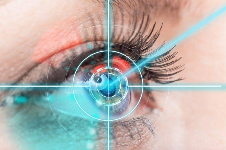 Лазерная коррекция зрения: как делают операцию, сколько это стоит и где сделать в москве?