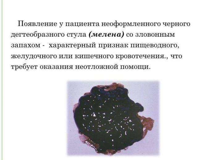 Окрашивание кала красным вином. черный кал (темного цвета) после употребления алкоголя