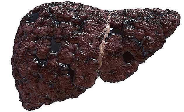 Рак печени 3 стадии: сколько живут и можно ли вылечить