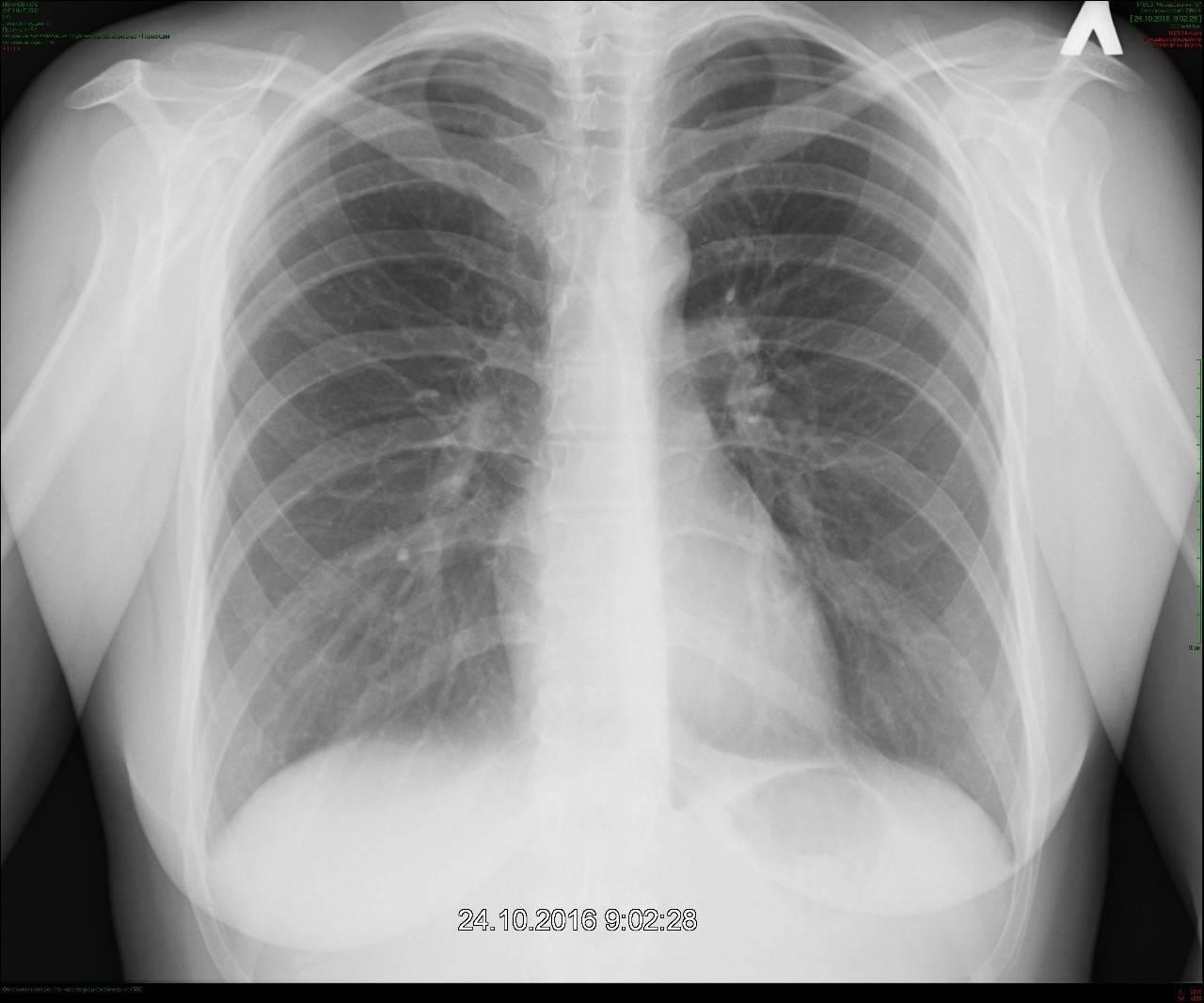 Рентгеновский снимок легких у здорового человека