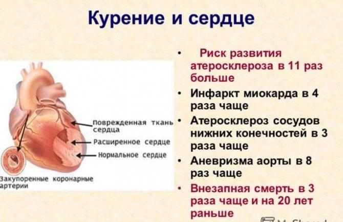 Алкоголь после инфаркта: последствия, для мужчин