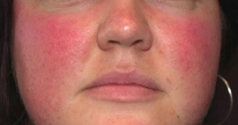 Почему краснеет лицо от алкоголя: как снять красноту с лица