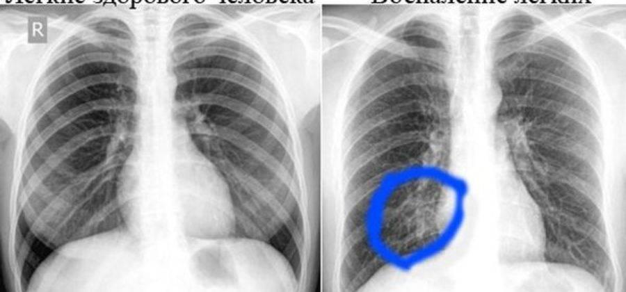 Что показывает флюорография человека, рентген легких курильщика и здорового человека