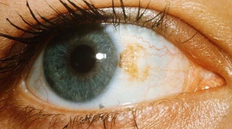Почему белки глаз становятся желтыми: причины и лечение