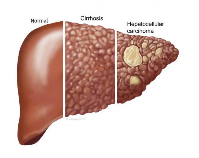Цирроз печени это рак или нет и чем отличается от онкологии