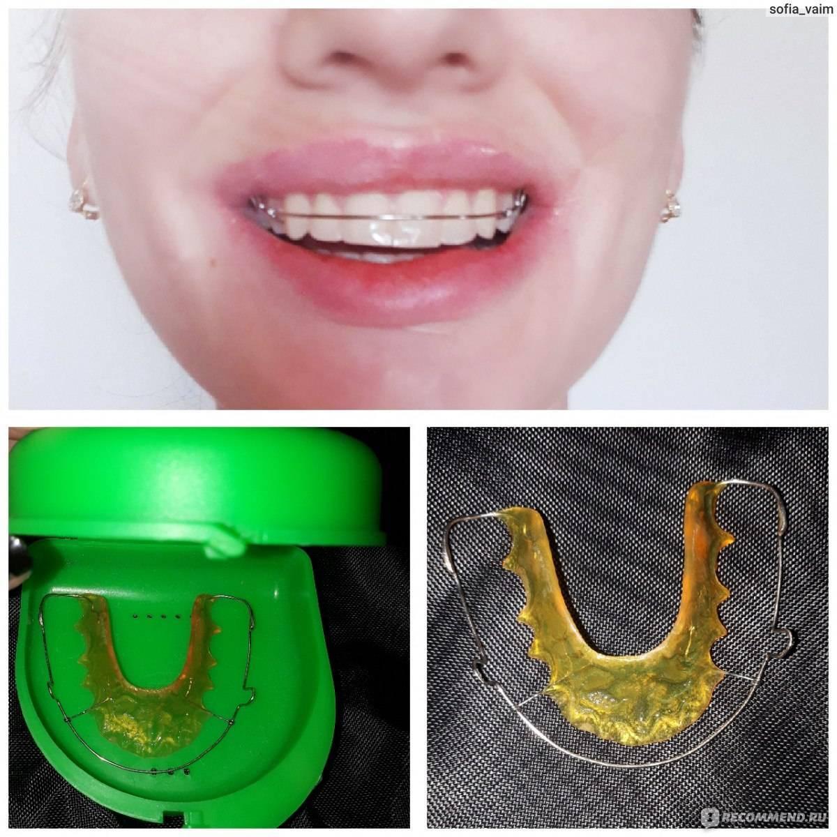 Топ-10 рекомендаций после отбеливания зубов