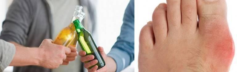 Можно ли при подагре пить водку, пиво и другие спиртные напитки