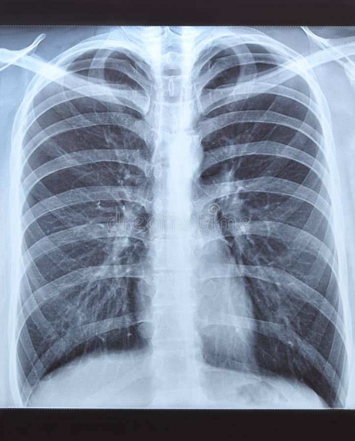 Рентген здоровых лёгких. диагностика рака легких на ранних стадиях: фото рентгена, показывает ли флюорография онкологию? диагностика рака легких на ранних стадиях: фото рентгена, показывает ли флюорография онкологию?