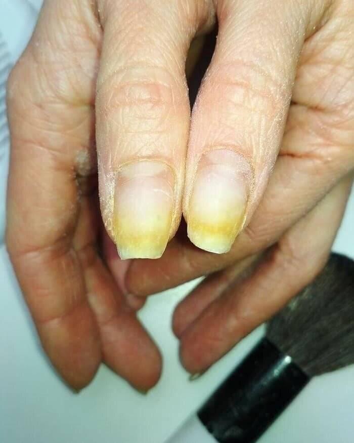 Как убрать запах сигарет и желтизну с рук, желтый палец курильщика