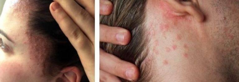 Аллергия на жидкость для электронных сигарет сыпь