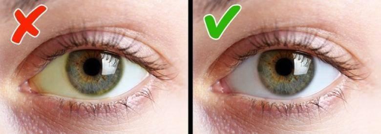 Пожелтели глаза и кожа причины лечение