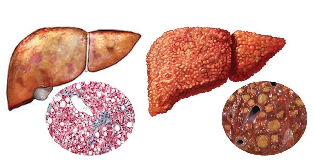 Прогноз срока жизни при метастазах в печени: отзывы, сколько живут при раке последней стадии