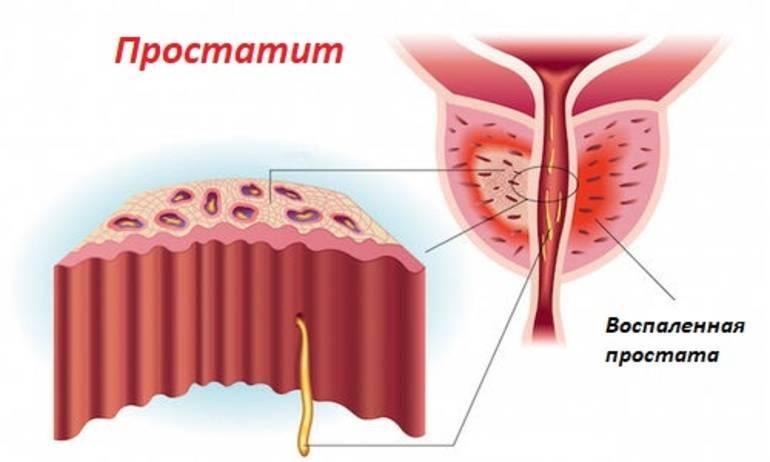 Простатит и алкоголь: можно ли потреблять спиртные напитки при аденоме и воспалении предстательной железы