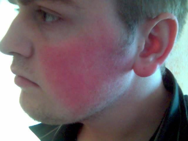 Красные пятна на лице после алкоголя: причины, лечение - alkostop 24