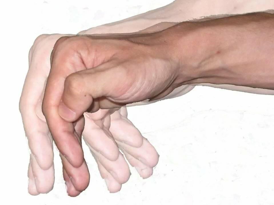 Тремор. трясутся руки спохмелья. что делать?
