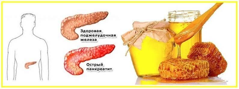 Алкоголь и поджелудочная железа: последствия его употребления. как восстановить поджелудочную железу после алкоголя.