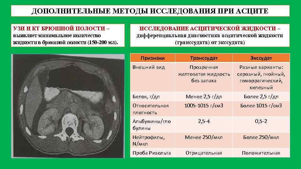 Асцит при онкологической патологии