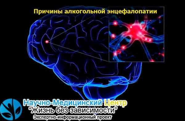Алкогольная токсическая энцефалопатия: последствия, лечение
