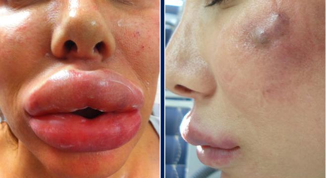 Сколько держится отек после увеличения губ гиалуроновой кислотой и как от него избавиться?
