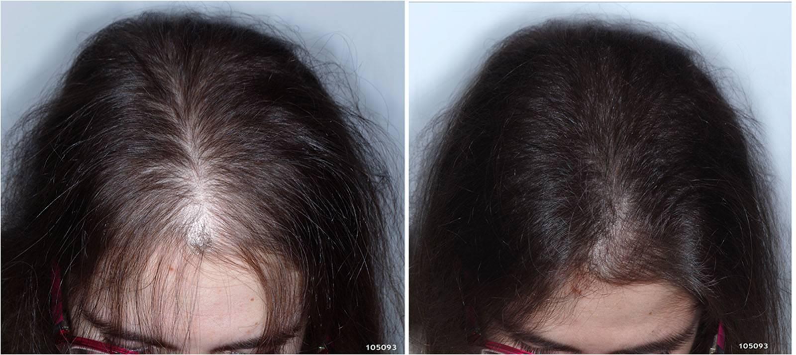 Курение и выпадение волос у мужчин - все о росте волос